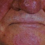 Rosacea (Akne rosacea)